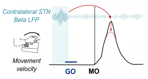 Bursts of beta activity (beta LFP) in the subthalamic nucleus (STN) approximately half a second before the movement onset (MO) are associated with lower speeds (velocity; red arrows) of the forthcoming reaching movements.